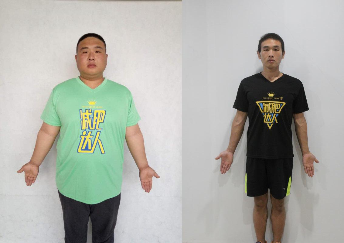 成人减肥案例王文义减重113斤